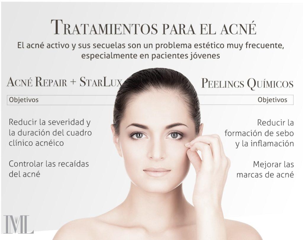 tratamiento acne iml