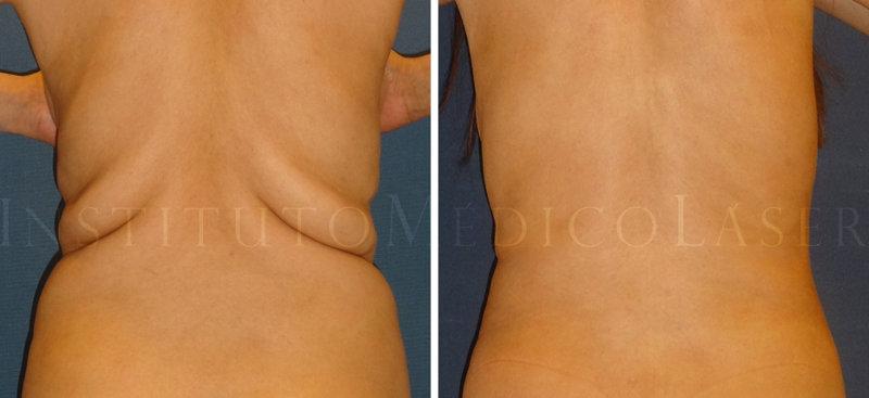 Antes y después de Vaser + Renuvion en espalda