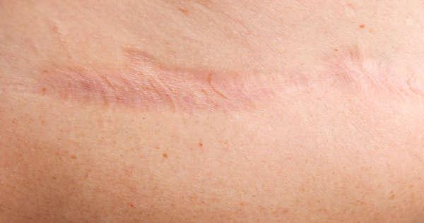 cicatriz-atrofica