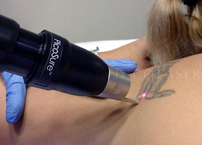 eliminación de tatuajes con láser de picosegundos en IML (Madrid)