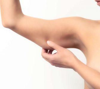mujer tocandose el brazo