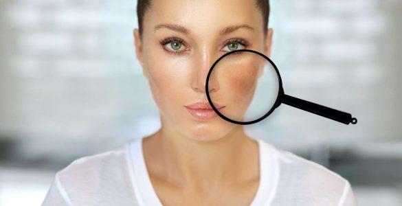 mujer con mancha en cara