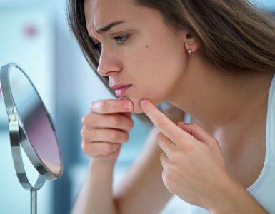 mujer mirando acne en espejo