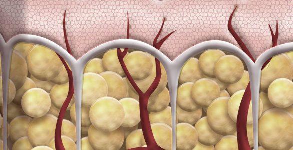 septos fibrosos
