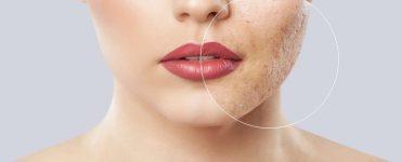 mujer con acne en cara