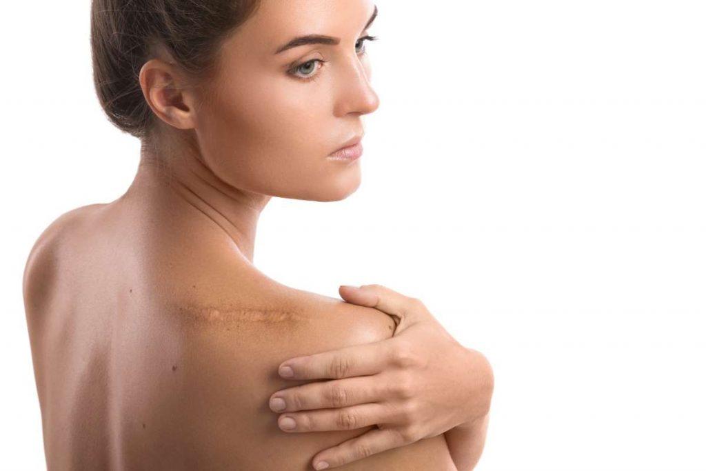 mujer con cicatriz en hombro
