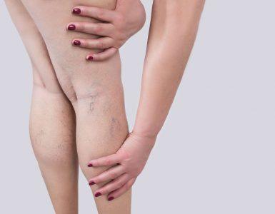 mujer tocando sus piernas