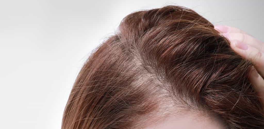 que es alopecia difusa
