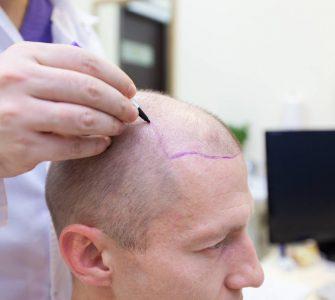 preparacion injerto capilar