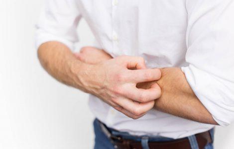 hombre rascando su brazo