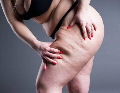mujer tocando su pierna