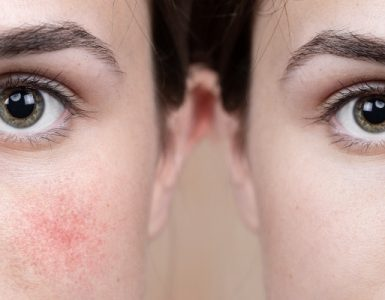 Problemas que produce el frío en la piel