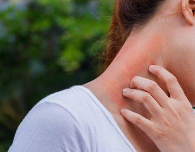 mujer rascando cuello