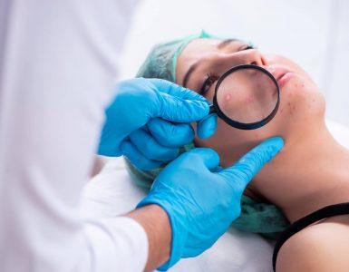 dermatologo revisasndo acne