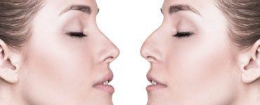 6 ventajas de la Rinoplastia Ultrasónica