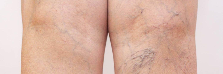 piernas con arañas vasculares