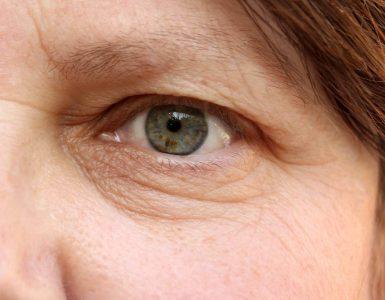 ojo de mujer con arrugas