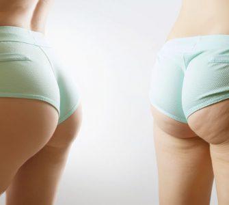 piernas de mujer con celulitis