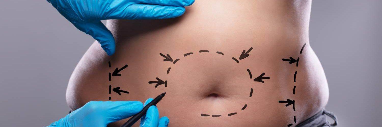 diferencia abdominoplastia y liposuccion