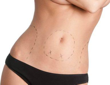 La recuperacion de abdominoplastia