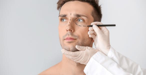 Blefaroplastia, despídete de las bolsas en tus ojos