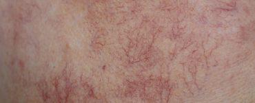 arañas vasculares cara